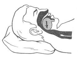 язык запал на подушке