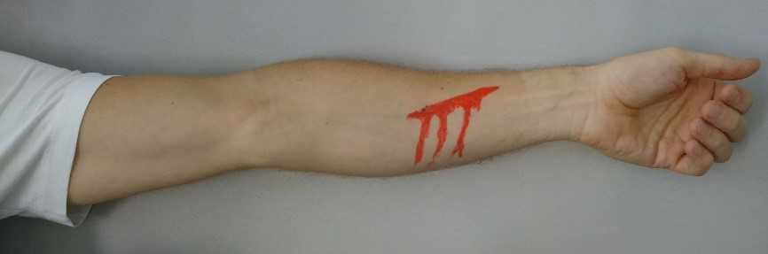 Первая помощь при кровотечениях