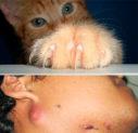 Первая помощь при кошачьих царапинах
